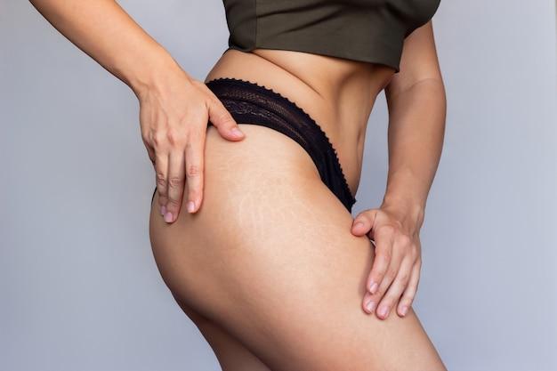 Primer plano de un muslo femenino con estrías debido a una fuerte pérdida o aumento de peso