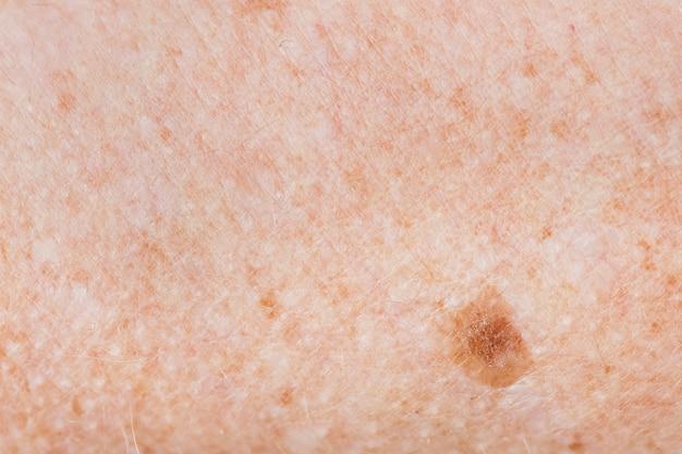 Primer plano de la piel pecosa
