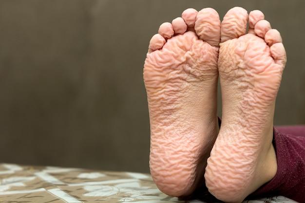 Primer plano de los pies arrugados de los niños después del baño largo