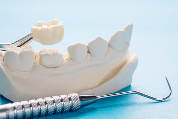 Primer plano / prostodoncia o prótesis / equipo de corona y puente de un solo diente modelo restauración express fix.