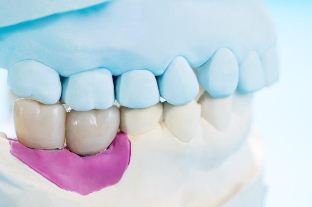 Primer plano / prótesis de implantes o prótesis / coronas y puentes dentales equipos de odontología de implantes y restauración de modelos express fix.