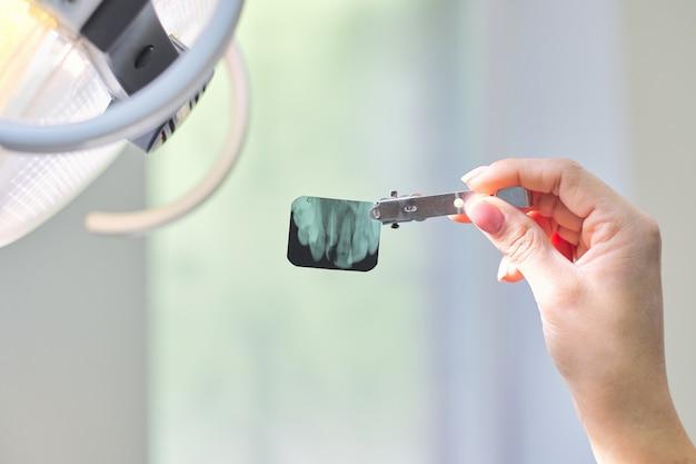 Primer plano de una radiografía dental de dientes en manos del médico dentista