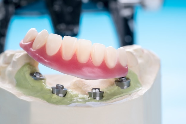 Primeros / implantes dentales soportados sobredentadura sobre fondo azul / tornillo retenido / restauraciones de implantes.