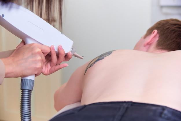 Procedimiento de eliminación de tatuajes en clínica de cosmetología láser.