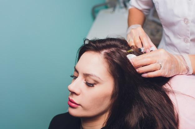 Procedimiento de inyección de plasma rico en plaquetas. estimulación del crecimiento del cabello.
