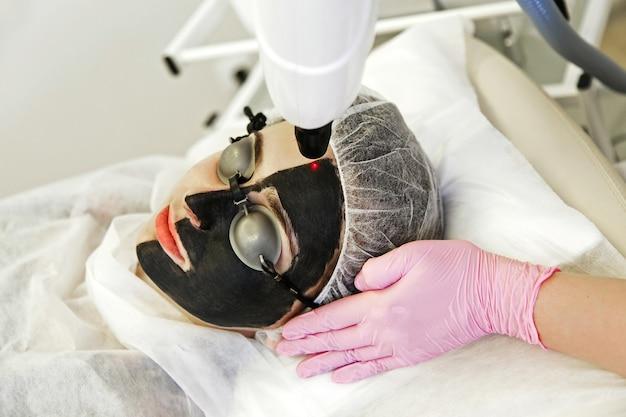 Procedimiento de pelado con carbón. rejuvenecimiento y aclaramiento de la piel con láser, tratamiento de pieles problemáticas. bienestar