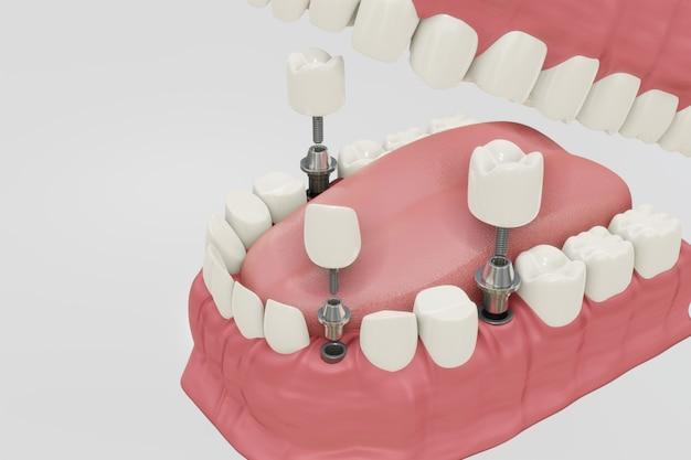 Procedimiento de tratamiento de implantes dentales. concepto de prótesis de ilustración 3d médicamente precisa.