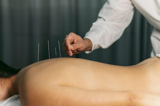 Proceso de acupuntura