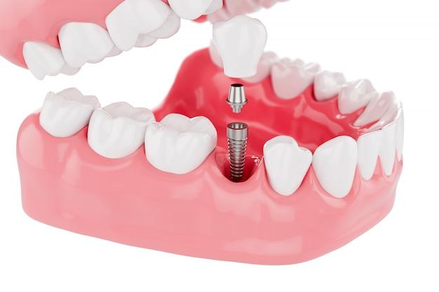 Proceso de cerca implantes dientes cuidado de la salud. enfoque selectivo. renderizado 3d