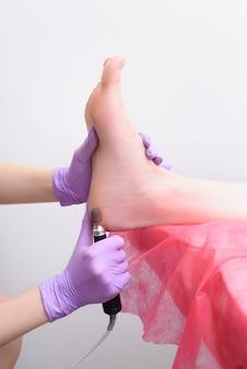 Proceso de tratamiento de la piel del pie. manos enguantadas con una máquina de pedicura. de cerca