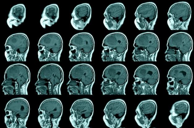 El programa mri brain del día mundial del accidente cerebrovascular revela una masa extraaxial bien circunscrita