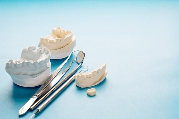Prostodoncia o prótesis