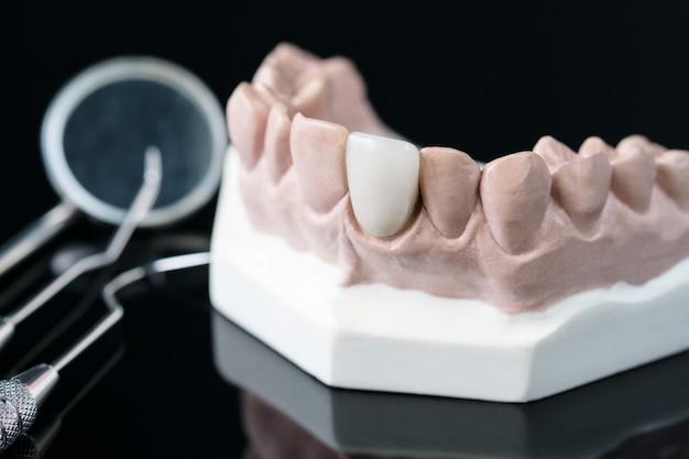Prostodoncista y herramienta dentista - modelo de demostración de dientes de variedades de prótesis dental