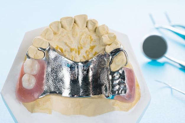 Prótesis parcial removible (rpd).