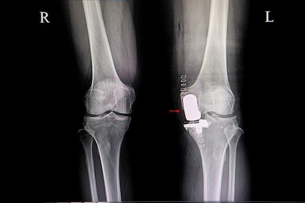 Una protesis de rodilla