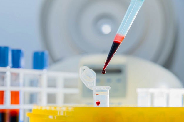 Prueba de adn en el laboratorio. una gota de sangre