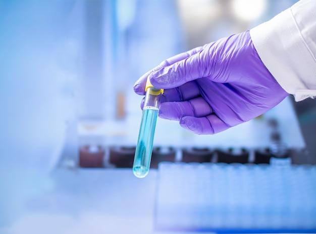 Prueba de bacterias en un tubo de ensayo de laboratorio en la mano del analista en un guante de plástico