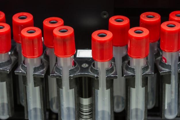 Prueba de separación de sangre médica centrífuga en laboratorio químico, equipo de medicina