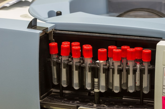 Prueba de separación de sangre médica centrífuga