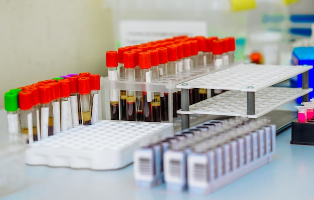 Se prueban muchos tubos de ensayo con sangre. equipo medico.