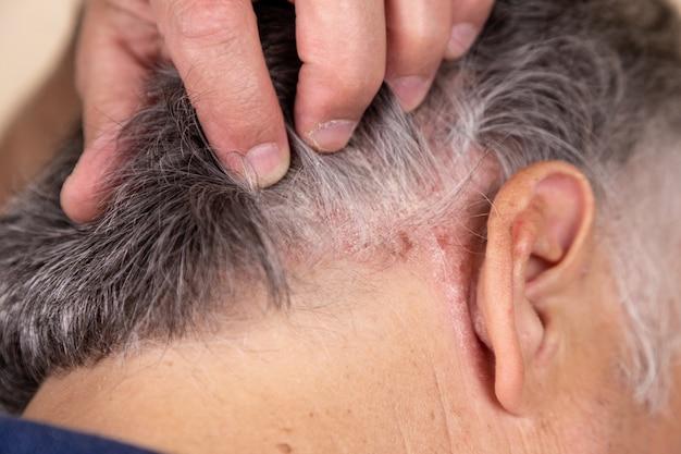 Psoriasis vulgar, enfermedad psoriásica de la piel en el cabello.
