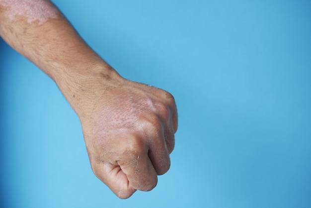 Quemaduras en la mano del hombre sobre la superficie azul