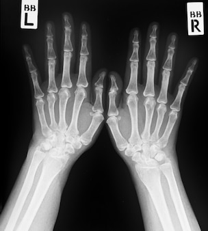 Radiografía de ambas manos humanas. manos humanas normales.