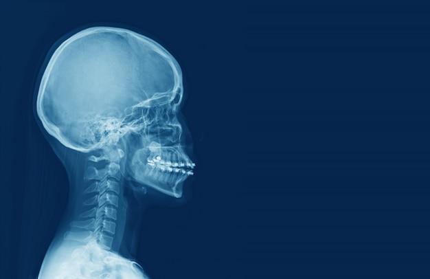 Radiografía de la columna cervical humana y el cráneo de la cabeza .sella turcica parece normal. concepto de imagen médica.