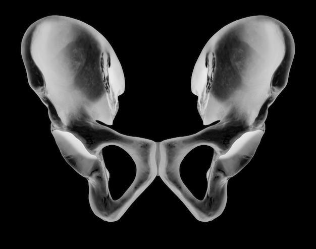 Radiografía del hueso humano de la cadera vista anterior.