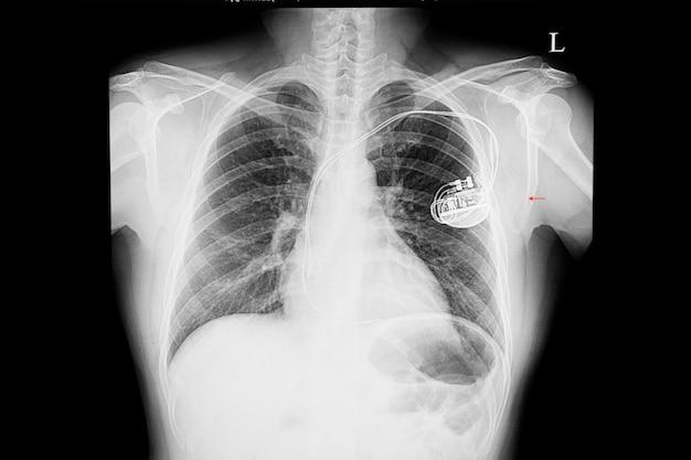 Radiografía de un paciente con marcapasos cardíaco.