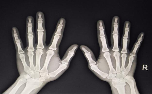 La radiografía de la película ap de la mano muestra las manos humanas normales en fondo negro