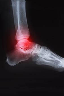 Radiografía de tobillo con artritis.