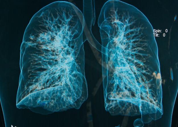 Radiografías de tórax bajo imagen 3d
