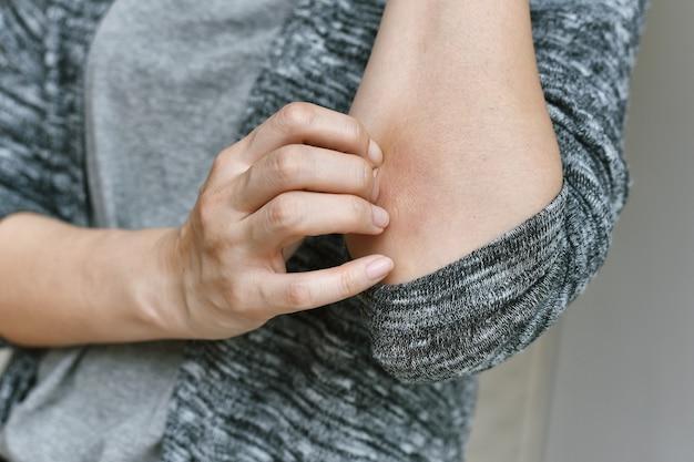 Rasguño problema de enfermedades de alergia de la piel