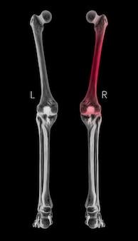 Rayos x, vista posterior del hueso de la pierna humana con reflejos rojos en las áreas con dolor del fémur.