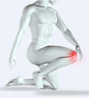 Render 3d de una figura masculina sosteniendo su rodilla con dolor