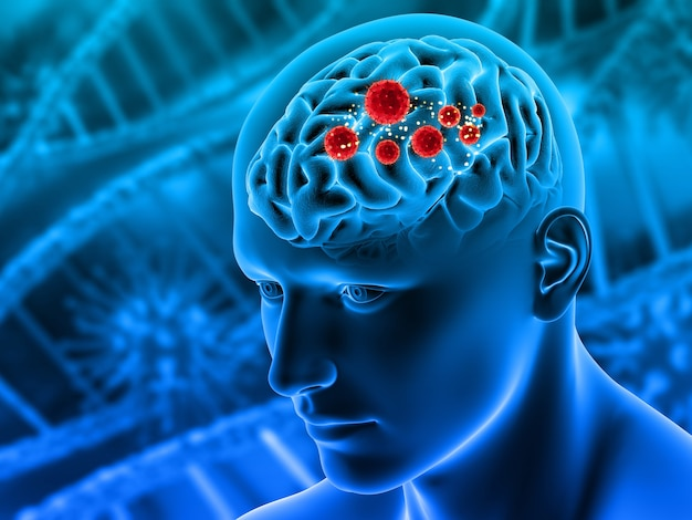 Render 3d de un fondo médico con figura masculina con tumores en el cerebro resaltado