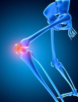 Render 3d de una imagen médica de un esqueleto con hueso de la rodilla resaltado