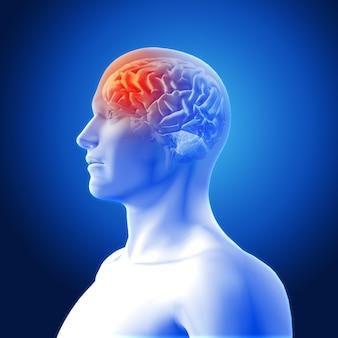 Representación de dolor de cabeza
