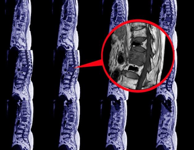 Resonancia magnética de la columna lumbar con contraste.