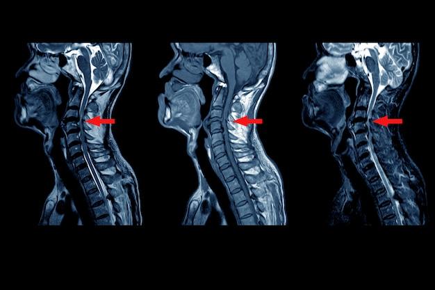 Resonancia magnética de la columna vertebral cervical: protrusión del disco central posterior moderada a severa de discos intervertebrales c3 / 4 a c5 / 6 con una pequeña colección de líquido subligamentoso posterior de 2,0 cm de longitud. en punto rojo