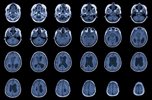 Resonancia magnética masa lobulada del diámetro del cerebro en el supraselar con compresión de la glándula pituitaria