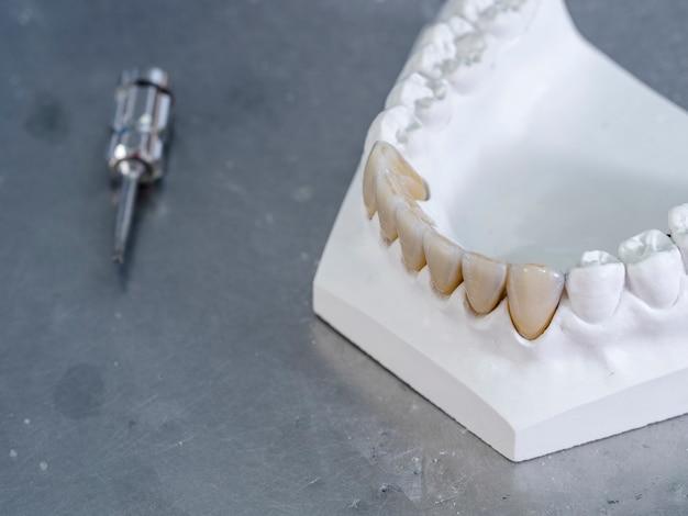 Restauraciones monolíticas de zirconia. dientes en un molde blanco.