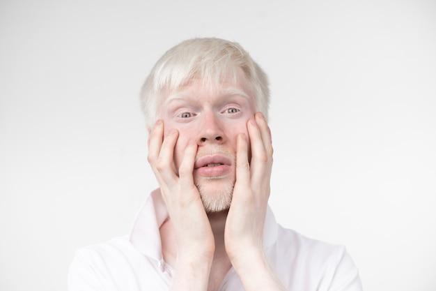 El retrato de un hombre albino en estudio vistió la camiseta aislada en un fondo blanco. desviaciones anormales apariencia inusual. anormalidad de la piel