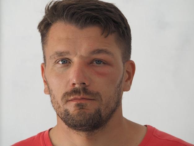 Retrato de un hombre con una picadura de avispa en la frente