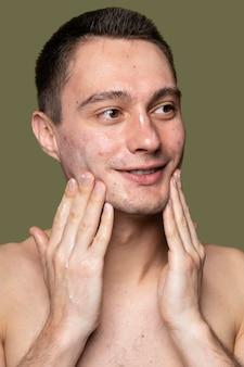 Retrato, de, joven, confiado, con, acné