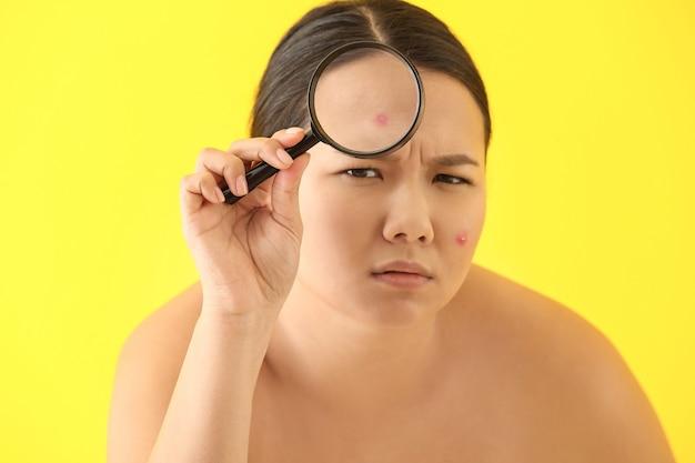 Retrato de mujer asiática joven con problema de acné y lupa