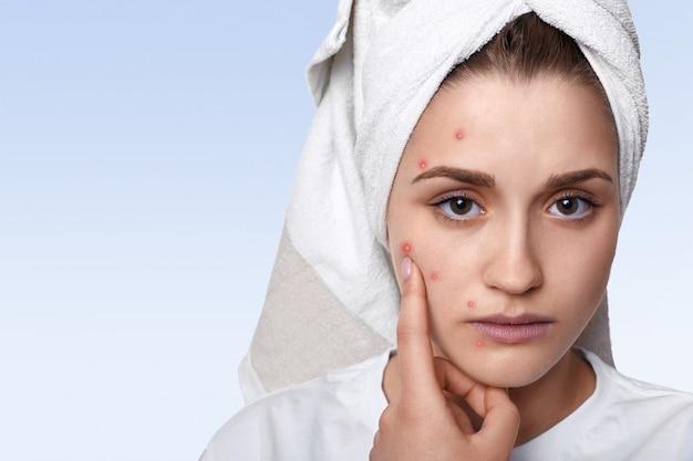 Retrato de mujer joven con problemas de piel y granos en la mejilla, con una toalla en la cabeza con expresión triste apuntando