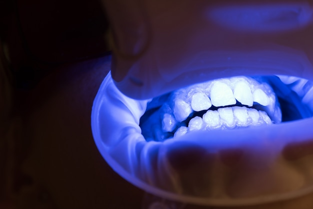 Retrato de primer plano de una paciente en el dentista en la clínica. joven mujer rubia abriendo la boca mientras dentista no identificable con guantes de látex comprueba el estado de sus dientes