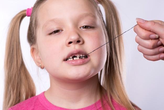 Sacando un diente de leche con un hilo de una niña